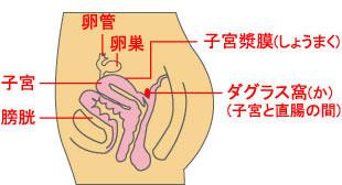 子宮内膜症(チョコレート嚢腫)・子宮腺筋症